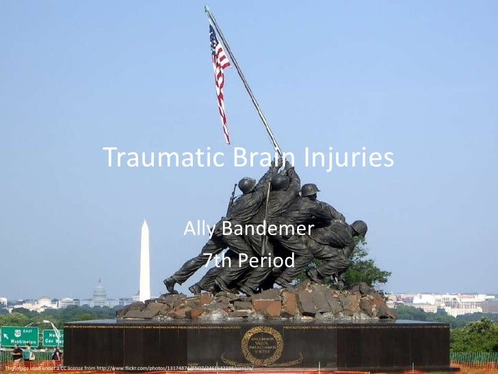 Traumatic Brain Injuries<br />Ally Bandemer<br />7th Period<br />This image used under a CC license from http://www.flickr...
