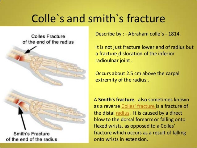 smith fracture vs colles fracture