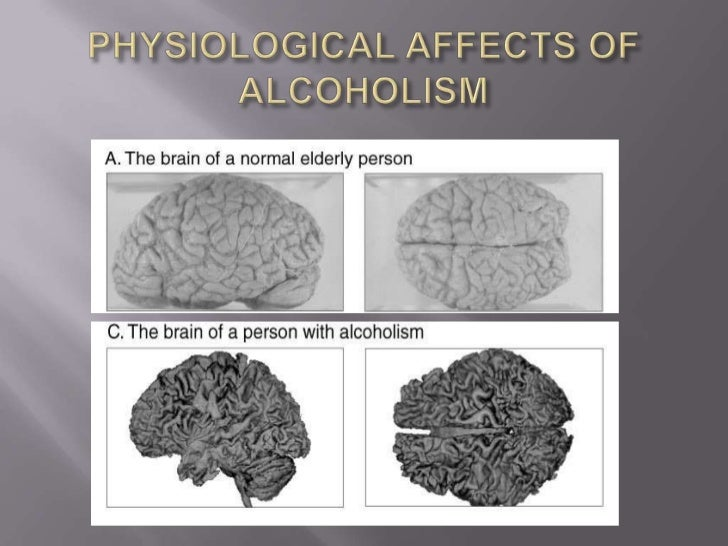 alcohol dementia Scientists have long known that too much alcohol can do a number  on cognition, but the evidence was spotty and the magnitude of the problem.