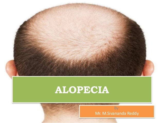 ALOPECIA By: Mr. M.Sivananda Reddy