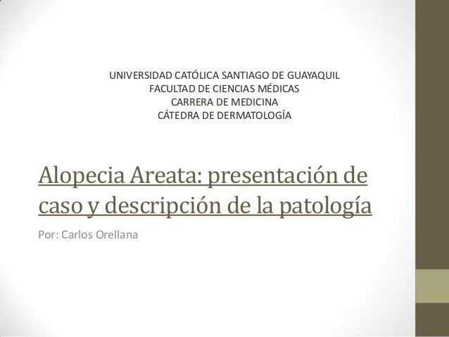 Alopecia Areata: presentación de caso y descripción de la patología Por: Carlos Orellana UNIVERSIDAD CATÓLICA SANTIAGO DE ...