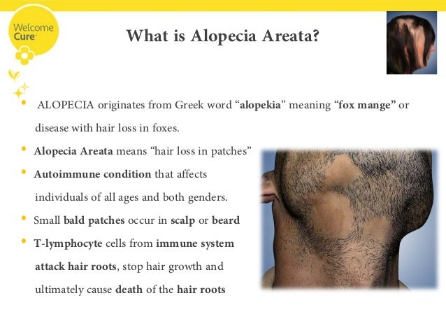 what is alopecia areata
