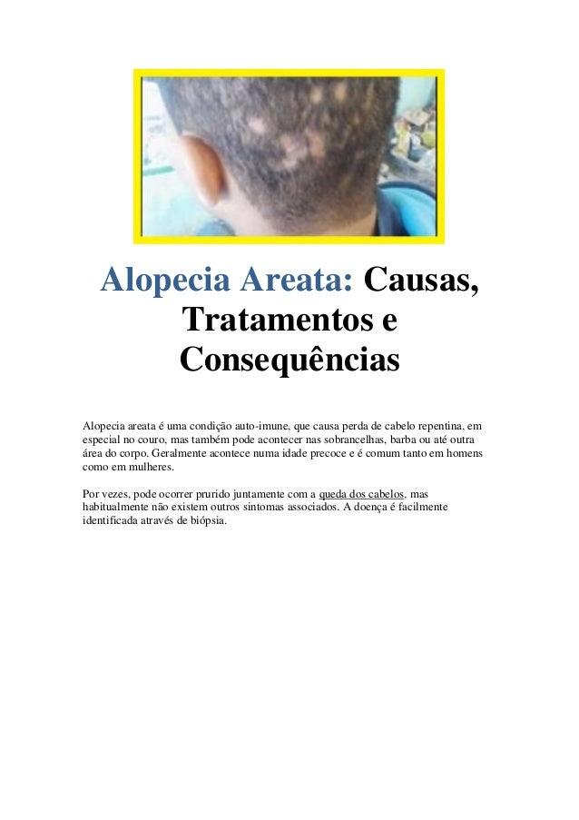 Causas,Alopecia Areata: Tratamentos e Consequências Alopecia areata é uma condição auto-imune, que causa perda de cabelo r...