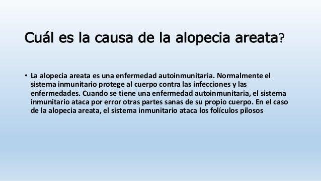 Vichy de la alopecia para los hombres las revocaciones