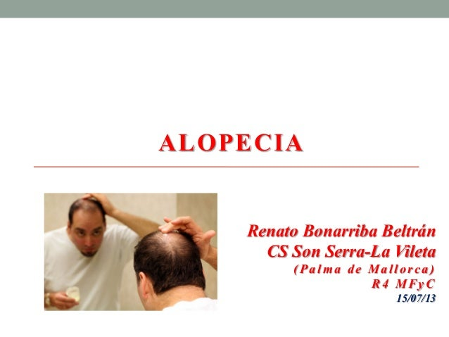 ALOPECIA Renato Bonarriba Beltrán CS Son Serra-La Vileta (Palm a de Mal lorca) R4 MFyC 15/07/13