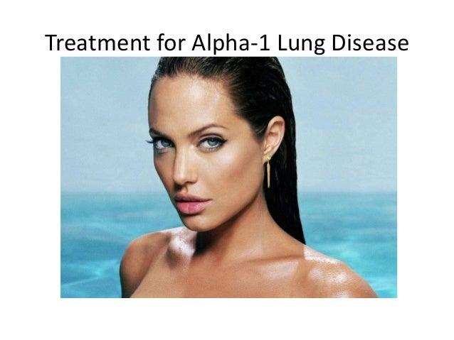 alpha 1 antitrypsin deficiency treatment guidelines