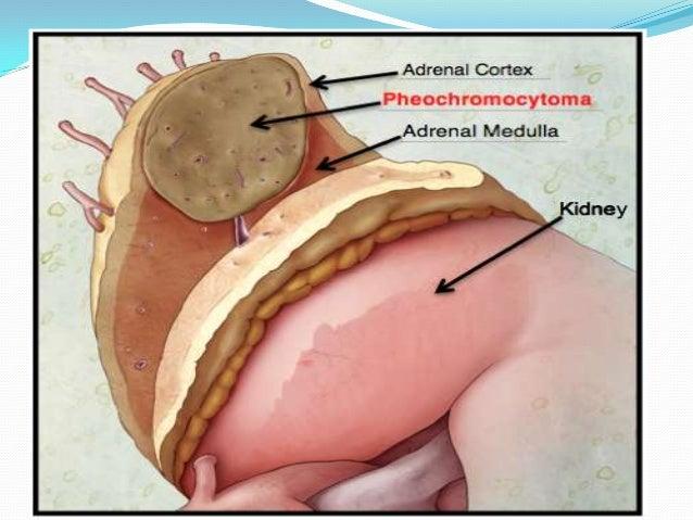 Peripheral vascular disease  Little benefit in Buerger's disease & int.claudication.  More useful in Reynaud's disease &...