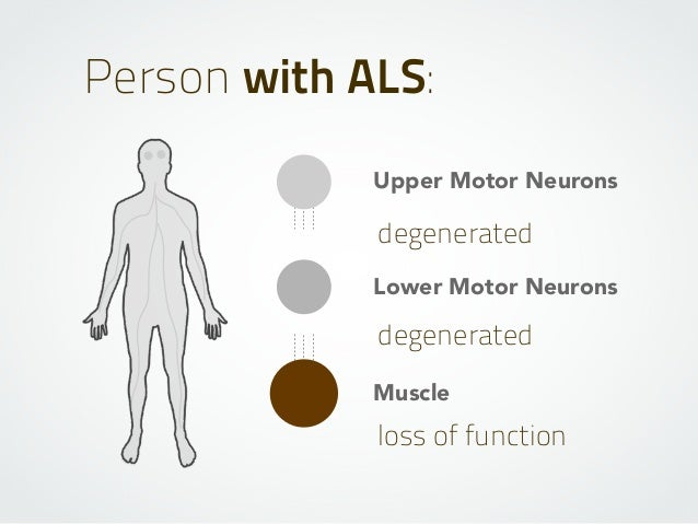 Upper Motor Neurons Lower Motor Neurons Muscle degenerated degenerated Person with ALS: loss of function