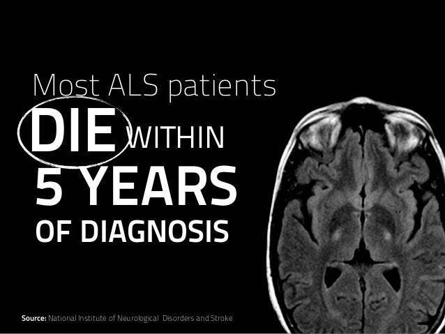 5 YEARS WITHIN Most ALS patients OF DIAGNOSIS DIE Source: National Institute of Neurological Disorders and Stroke