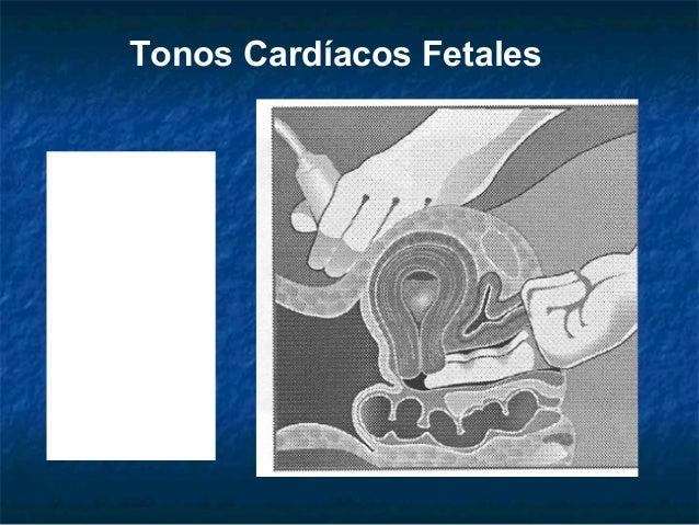 La osteocondrosis sheynogo del departamento de la columna vertebral tservikalgiya