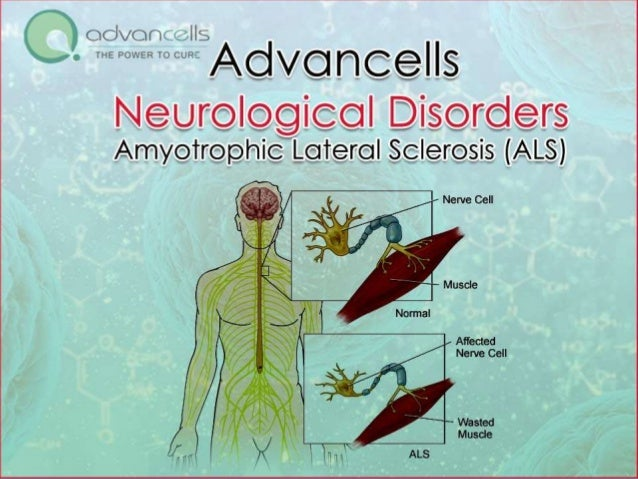 ALS Treatment in India | Stem Cell Treatment for ALS
