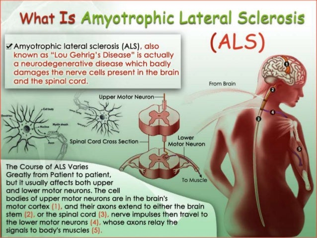 Als treatment in india stem cell treatment for als for What is motor neurone disease symptoms