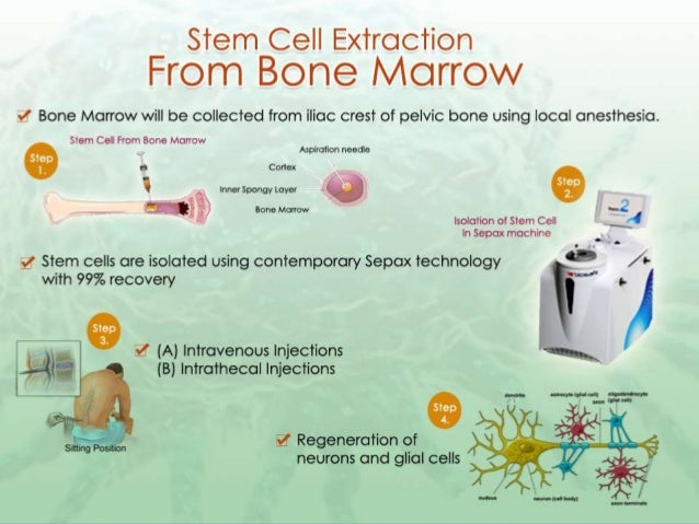 Als Treatment In India Stem Cell Treatment For Als