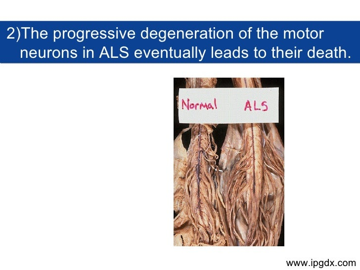 Als Amyotrophic Lateral Sclerosis Prognosis Phase