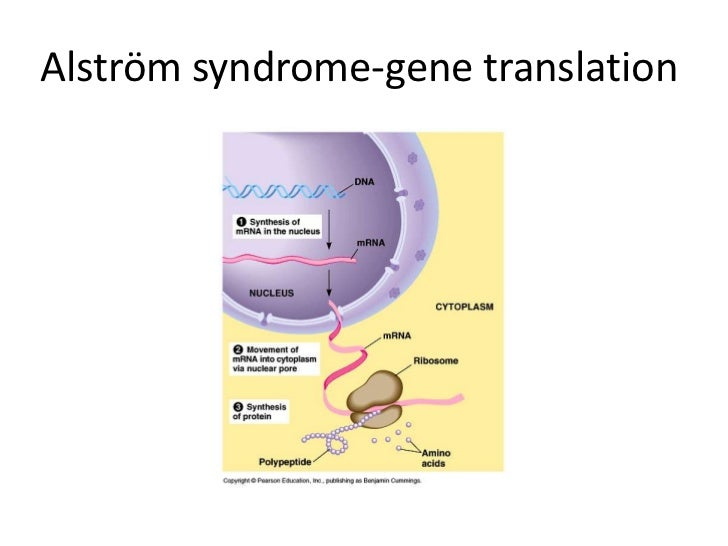Alström syndrome location of the gene<br />The ALMS1 gene is located on the short (p) arm of chromosome 2 at position 13.<...