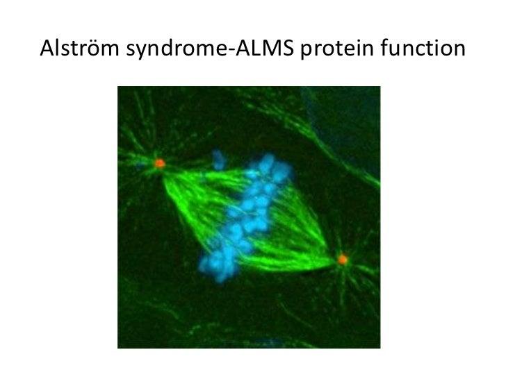 Alström syndrome-gene translation<br />