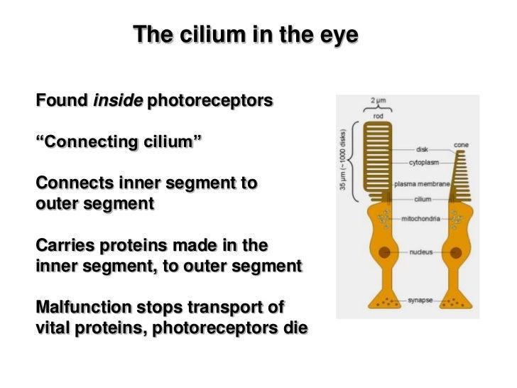 Alström syndrome cilia in photoreceptors<br />