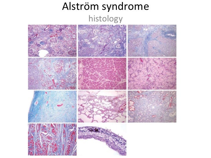 """Alström Syndrome is one <br />of many """"ciliopathies""""<br />Primary Cilia Dyskinesia (PCD)<br />Polycystic Kidney Disease (P..."""