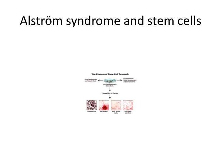Alström syndrome and stem cells<br />
