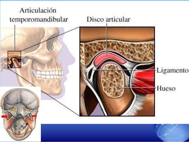 Alteraciones de la articulacion temporomandibular ATM