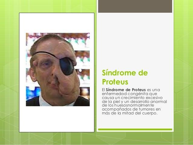 Síndrome de Proteus El Síndrome de Proteus es una enfermedad congénita que causa un crecimiento excesivo de la piel y un d...