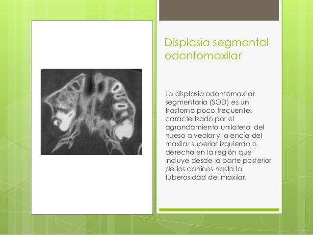 Displasia segmental odontomaxilar La displasia odontomaxilar segmentaria (SOD) es un trastorno poco frecuente, caracteriza...