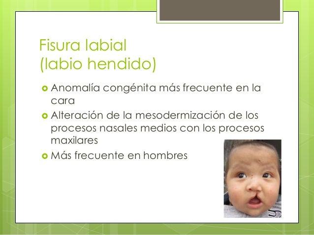  Se relaciona con la edad de la madre  Puede abarcar el proceso alveolar y llegar al paladar  Unilateral o bilateral