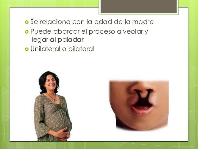 Fisura palatina (paladar hendido)  Suele ir acompañada de labio hendido  Mayor afectación a la mujer  No se relaciona c...