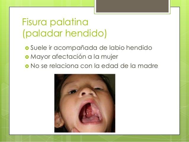  Puede solo afectar la úvula  Falta de fusión de los procesos palatinos laterales entre si o con el tabique nasal o con ...