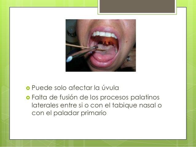  Cuando el labio fisurado va acompañado de paladar hendido se denomina fisura labio-palatina