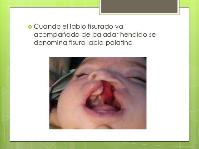  Origen genético: síndrome de Patau - Labio y paladar hendido - Polidactilia - Defectos oculares - Sordera - Muerte neona...