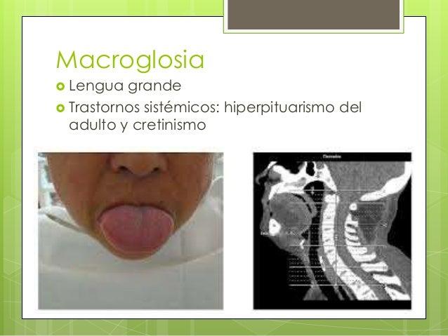  Congénita: síndrome de Down, síndrome de Beckwith-Wiedemann y síndrome de neoplasia endócrina múltiple.  Secundaria: tu...