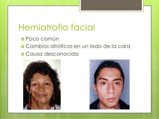Hemiatrofia facial  Poco común  Cambios atróficos en un lado de la cara  Causa desconocida