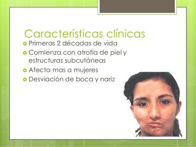 Características clínicas  Primeras 2 décadas de vida  Comienza con atrofia de piel y estructuras subcutáneas  Afecta ma...