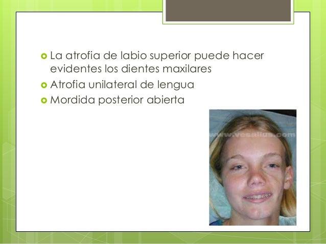  La atrofia de labio superior puede hacer evidentes los dientes maxilares  Atrofia unilateral de lengua  Mordida poster...
