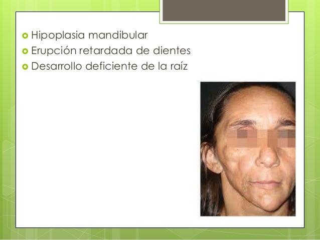  Hipoplasia mandibular  Erupción retardada de dientes  Desarrollo deficiente de la raíz