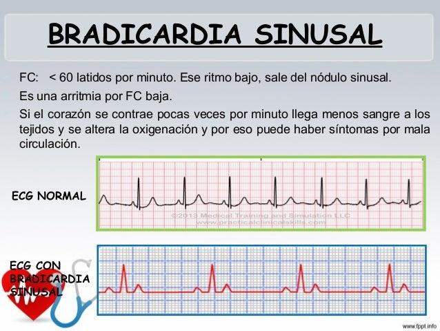 ARRITMIA SINUSAL  Variación del ciclo sinusal. Ritmo benigno. Periodos alternos de frecuencias lentas y rápidas con relac...