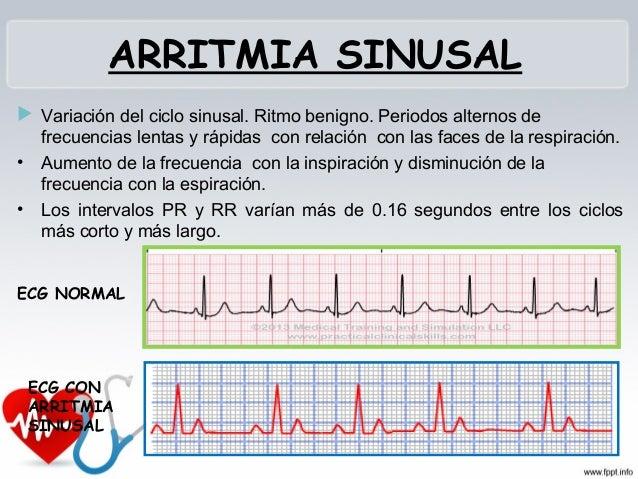 PAUSA SINUSAL Ausencia de onda P Lo que determina una interrupción del ritmo sinusal. El nódulo seno-auricular no inici...