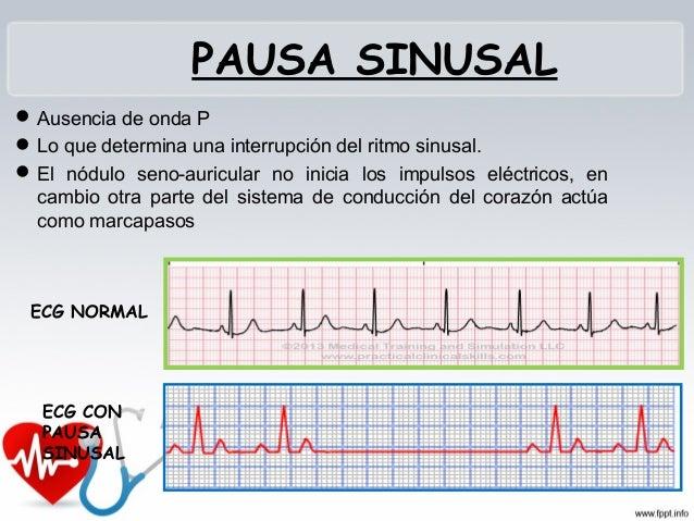 TAQUICARDIA AURICULAR Se originan en el musculo auricular Varios impulsos eléctricos de las aurículas a los ventrículos....