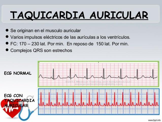 TAQUICARDIA VENTRICULAR • Disminución del gasto cardiaco • Tendencia a pasar a fibrilación ventricular • CAUSAS: Isquemia ...