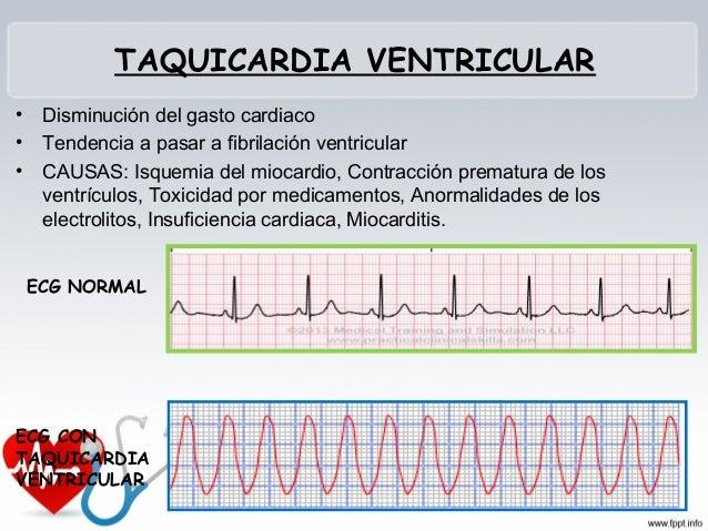 TAQUICARDIA SINUSAL No es un trastorno primario del mismo corazón Se manifiesta como respuesta fisiológica a estímulos c...
