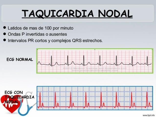FIBRILACIÓN AURICULAR  Irregularidad del complejo QRS, ausencia de las ondas P.  Falta de funcionamiento normal de las a...