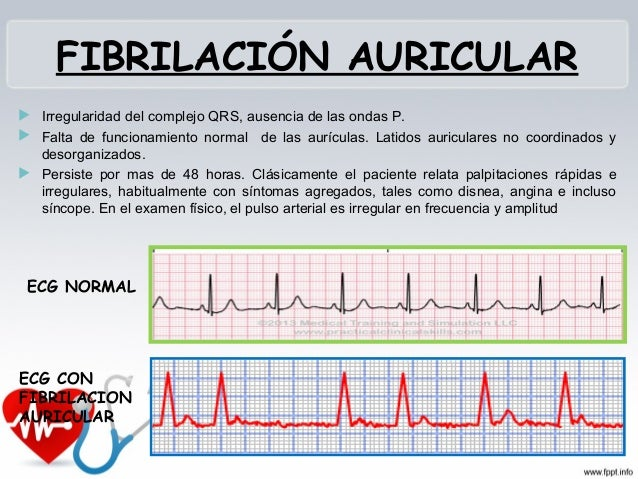 FIBRILACIÓN VENTRICULAR Ritmo iniciado por los ventrículos No tiene gasto cardiaco Falla total del bombeo Altura de la...