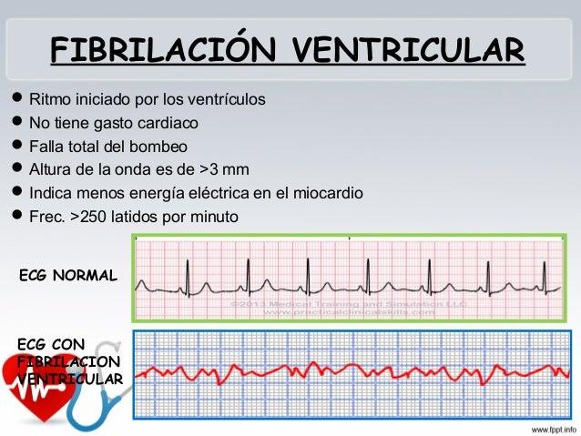 ALETEO AURICULAR Arritmia por progresión de impulsos eléctricos que entran constantemente en las aurículas Ondulaciones ...