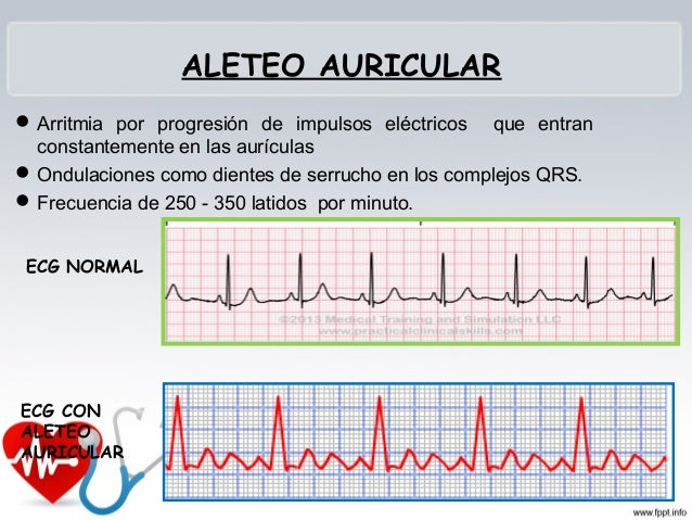 RITMO NODAL • Se origina en la unión del nódulo AV y haz de his. • Las ondas P pueden estar invertidas, o no verse y los c...
