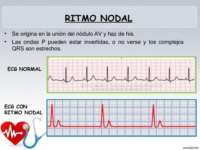 ASISTOLIA • Ausencia de la actividad eléctrica • No tiene gasto cardiaco • No hay pulso • Etapa final de la arritmia fatal...