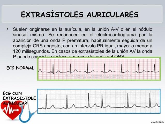 Conducción patológica por medio de las fibras conductoras accesorias (has o fibras de KENT) que no pasan por el nódulo AV...