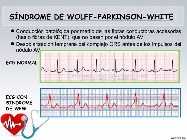 BLOQUEO AV 1° GRADO • Cuando los impulsos que pasan desde las aurículas a los ventrículos disminuyen su velocidad. Es una ...