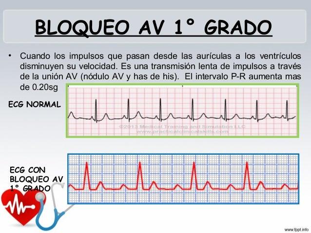 BLOQUEO AV 2° GRADO TIPO 1 Aumento del intervalo P-R de 0.25 -0.45 seg Disminución del intervalo RR Igualdad de los int...