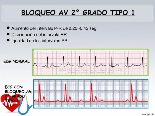 BLOQUEO AV 2° GRADO TIPO 2 • Los intervalos PR se van alargando hasta que uno se bloquea y vuelve comenzar la secuencia. L...